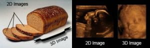 2D vs 3D Ultrasound Scan