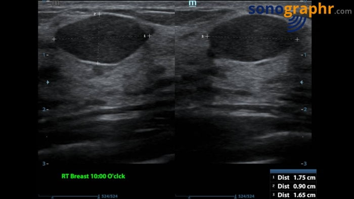 Breast scan - benign lesion