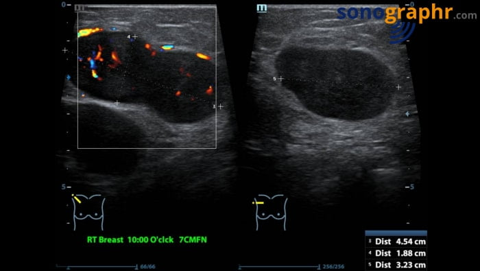 Breast scan - enlarged metastatic lymph node