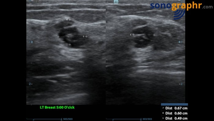 Breast scan - septated cyst