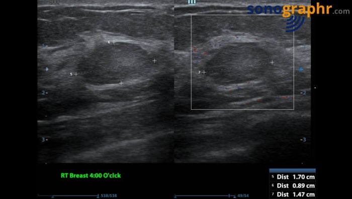 Breast scan - solid lesion