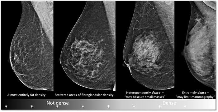 Beza Ultrasound dan Mamogram